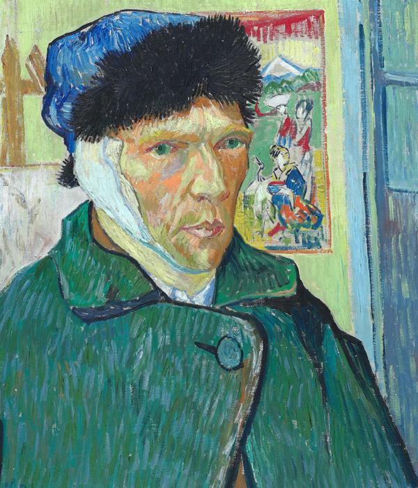 Vincent van Gogh, Mental Illness and His Ear